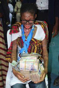 Muslim acid victim, Jamila Yusuf